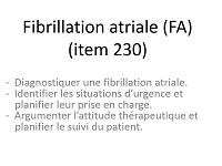 fibrilation-atriale